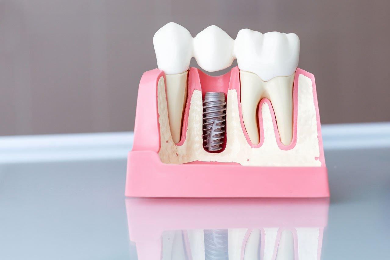 Implantologia dentale Napoli